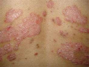 皮肤病牛皮癣传染吗